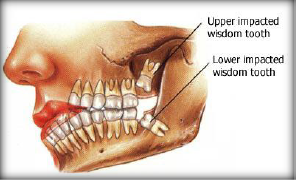 Wisdom Teeth Bleeding And Oozing | RM.